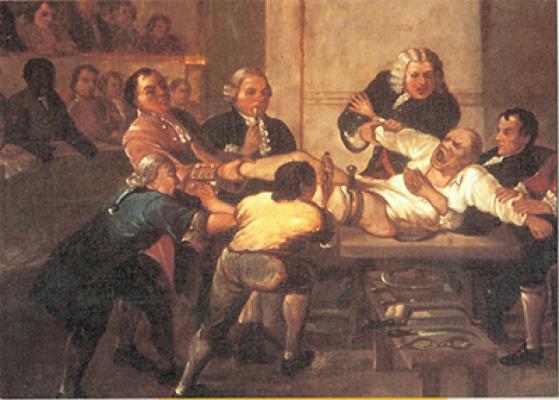 An amputation at St Thomas' c1725
